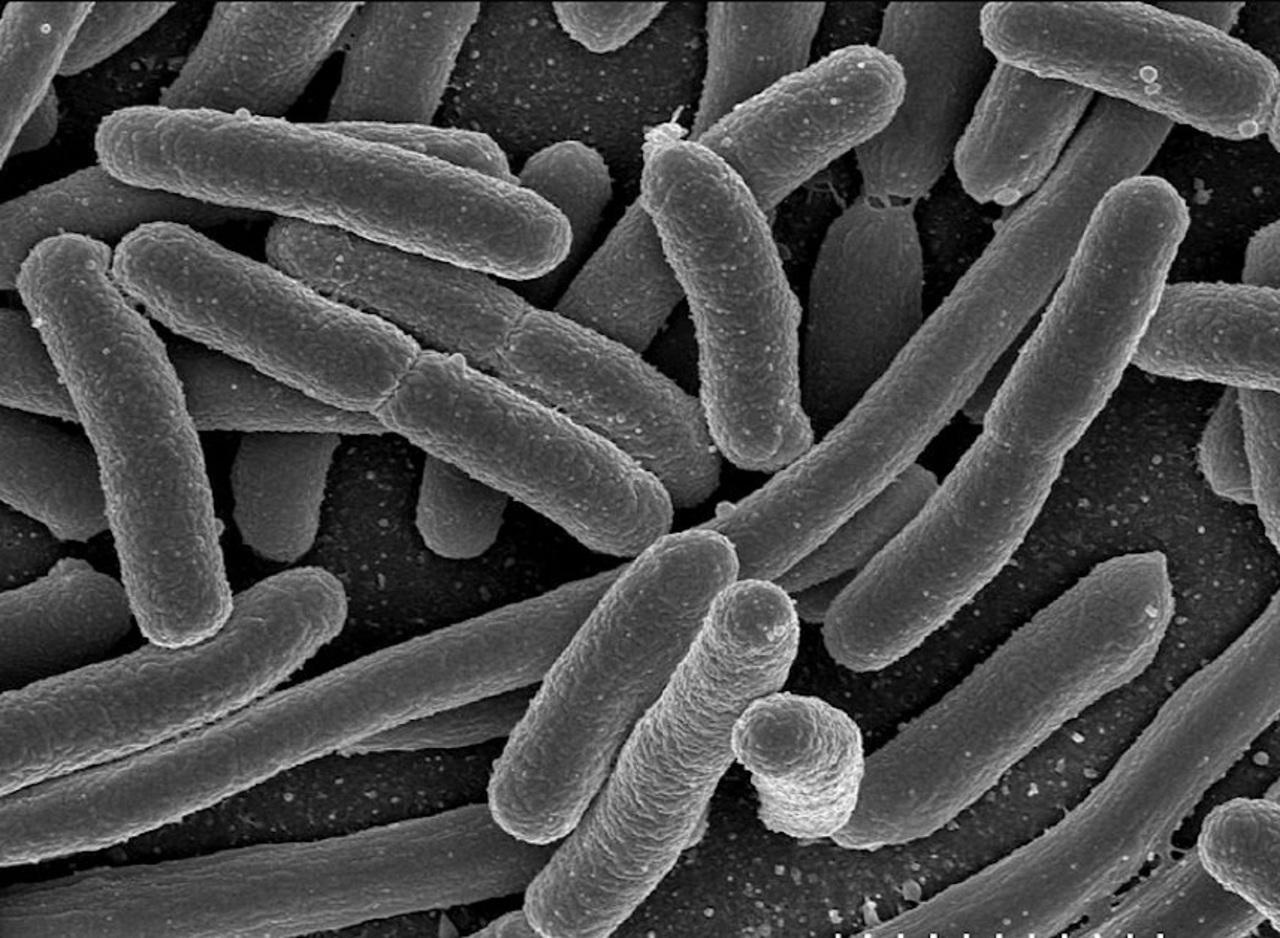 Lonza développe des capsules de bactéries pour régénérer la flore intestinale